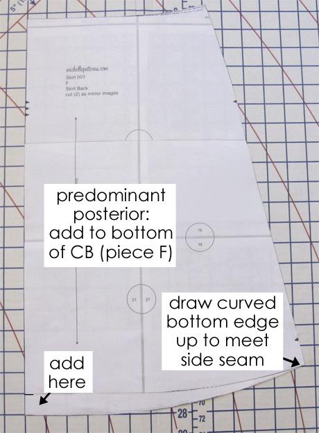 Predominant posterior